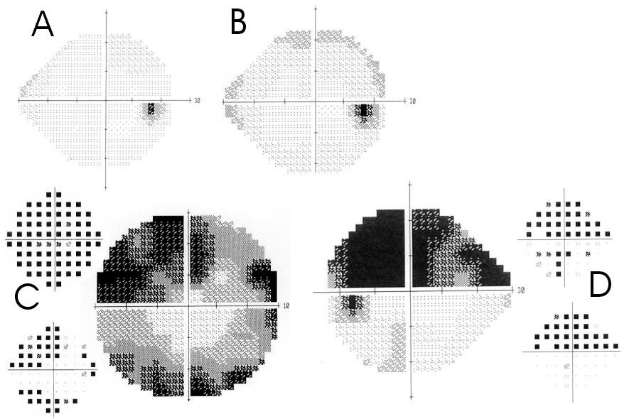 QUALITE DE VIE ET BASSE VISION Figure 7 : Champ visuel dans le glaucome chronique à angle ouvert : A, champ  visuel normal. B, Périmétrie bleue jaune, avec ébauche de scotome arciforme.